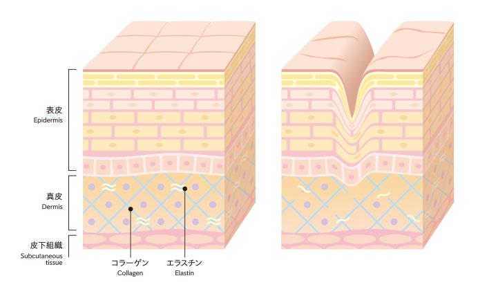 表皮の構成図